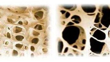 osteoporiose_horizontaal
